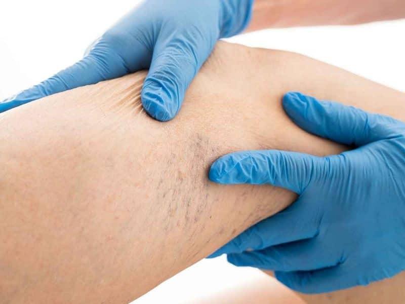 Varis Klinikleri Tavsiyeleri